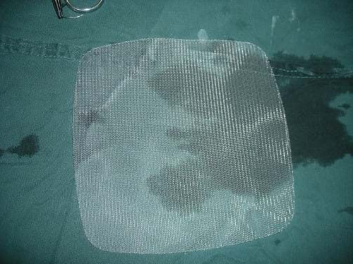 Hernia Mesh Case Evaluation